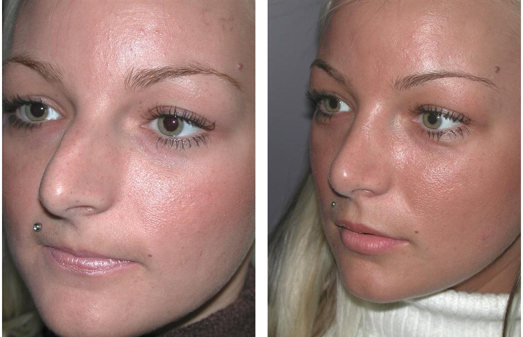angle view of toronto rhinoplasty before and after on female
