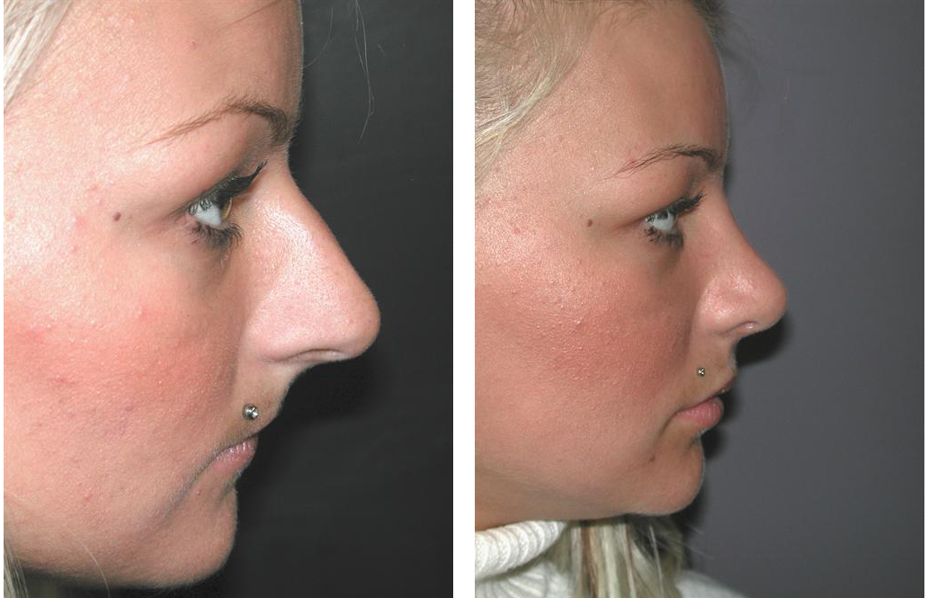 right side view of toronto rhinoplasty before and after on female patient with blonde hair