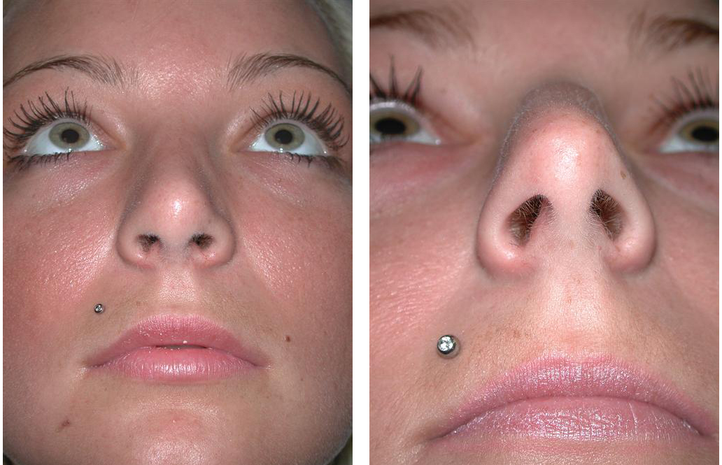 up nose angle of toronto rhinoplasty before and after on female patient