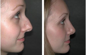 toronto nosejob before and after by dr. richard rival
