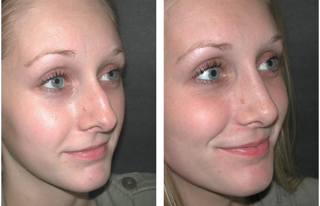 toronto nosejob before and after of female patient in toronto