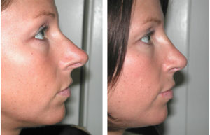 bridge fixed in rhinoplasty by dr. richard rival of toronto and newmarket