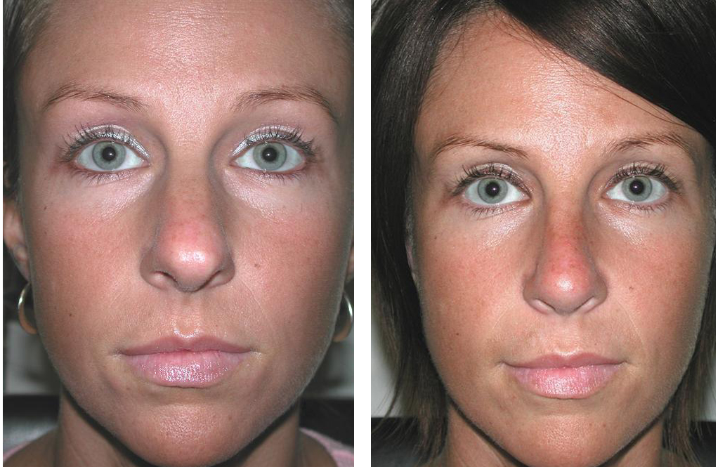 toronto rhinoplasty by Dr. Rival of the Plastic Surgery Skin Clinic