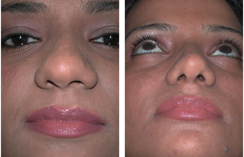 female nosejob altered by facial plastic surgeon Dr. Richard Rival