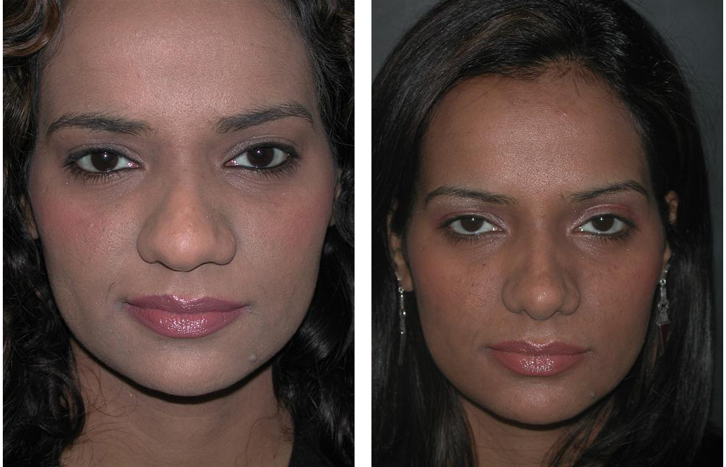 female rhinoplasty done by facial plastic surgeon Dr. Richard Rival