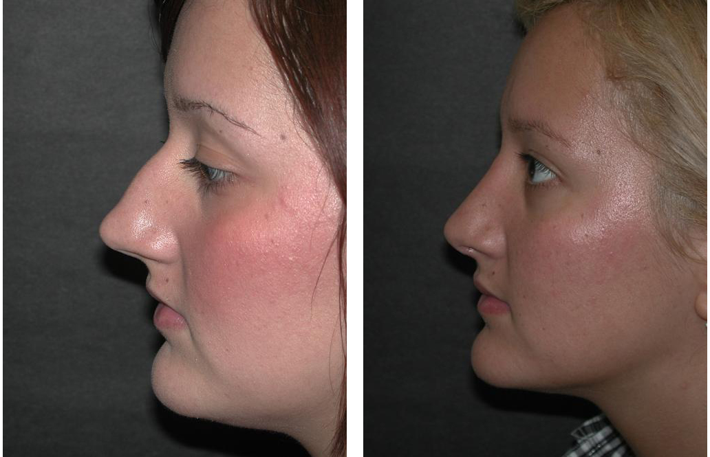 Before and after Toronto Rhinoplasty done by Dr. Richard Rival