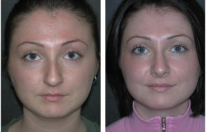 Before and After Rhinoplasty by Toronto cosmetic surgeon Dr. Rival