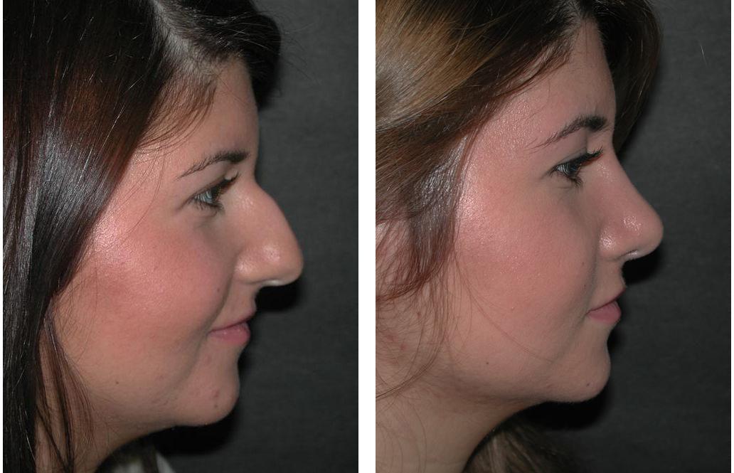 Toronto rhinoplasty done on young female