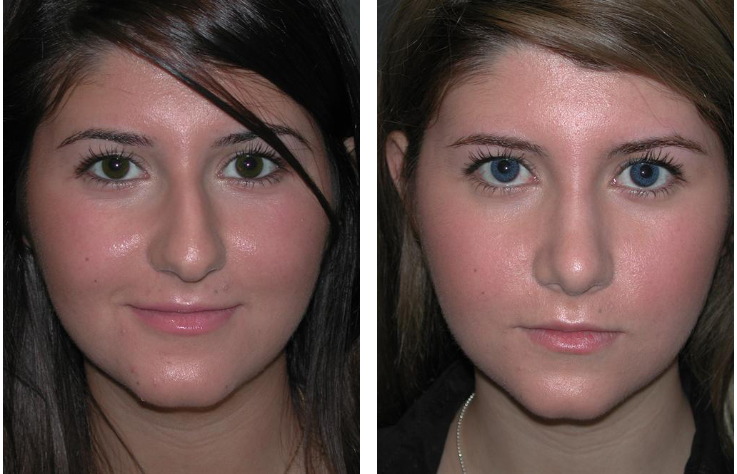 female rhinoplasty by Dr. Richard Rival of the Plastic Surgery Skin Clinic Newmarket