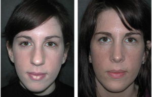 brunette female rhinoplasty by Dr. Richard Rival of Toronto