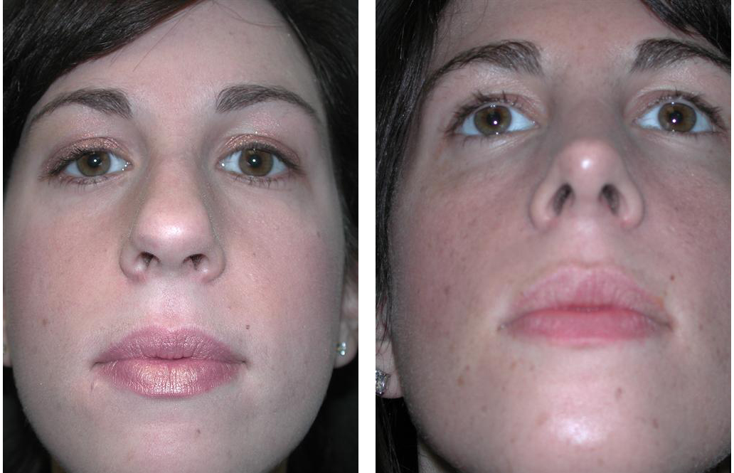 Rival cosmetic surgery nosejob on female patient