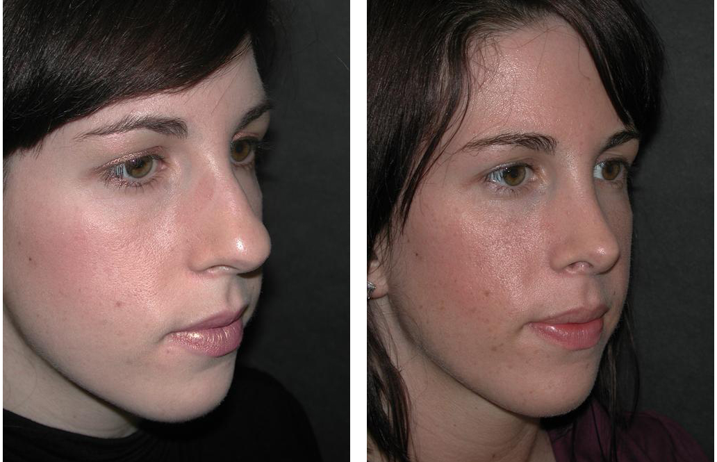 Nose job before and after by Dr. Richard Rival