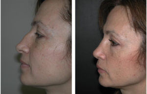 Toronto Rhinoplaty before and after by Dr. Richard Rival