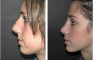 Young female nose job done by Toronto plastic surgeon Richard Rival