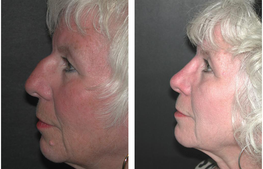 elder female nosejob done by Toronto plastic surgeon Dr. Richard Rival