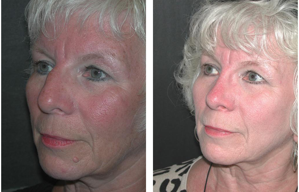 elder female rhinoplasty done by Toronto plastic surgeon Dr. Richard Rival