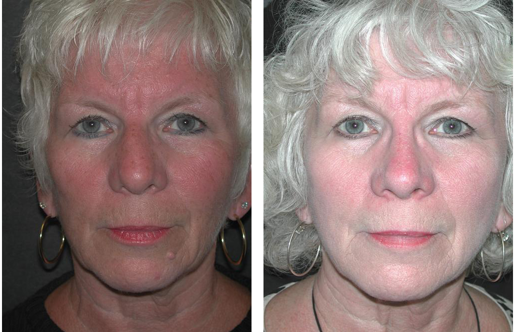 elder woman nose job done by Toronto plastic surgeon Dr. Richard Rival