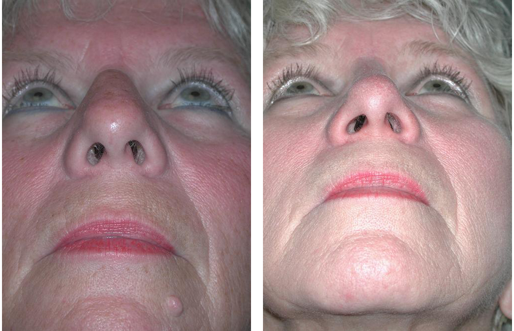 toronto Rhinoplasty before and after gallery