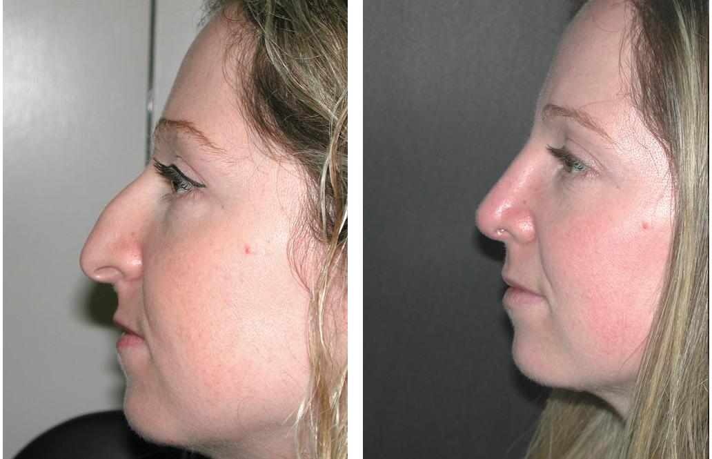 blonde female rhinoplasty done by Toronto cosmetic surgeon