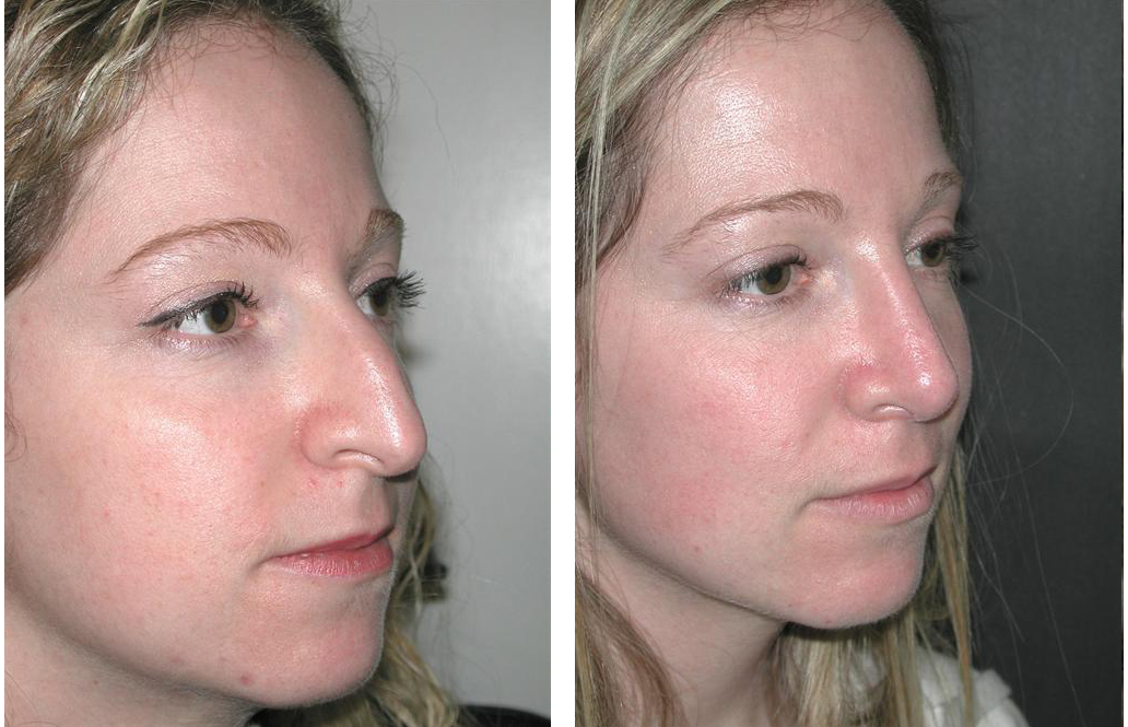 Rhinoplasty by Toronto cosmetic surgeon Dr. Richard RIval