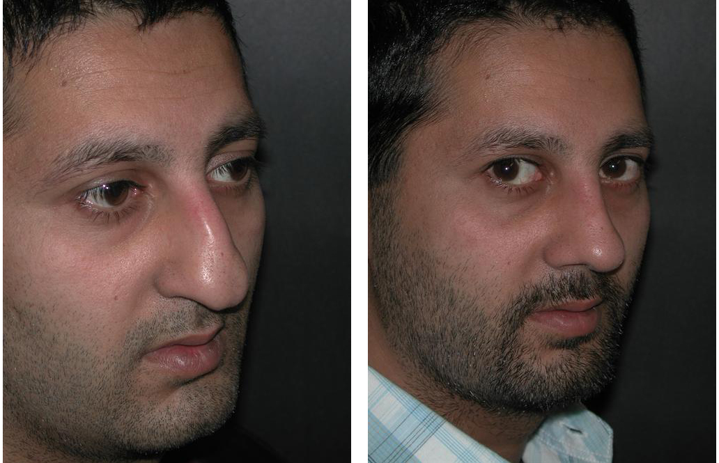 male before and after photos of rhinoplasty by Dr. Richard Rival