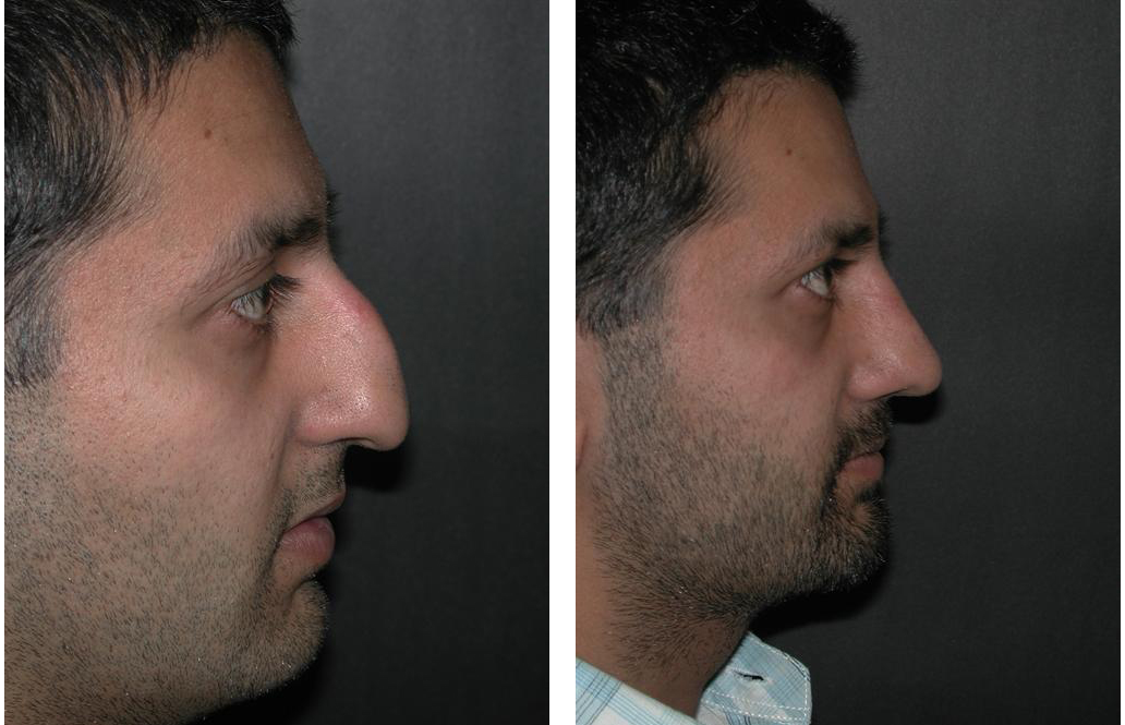 Dr. Richard Rival's rhinoplasty work in before and after nosejob photos