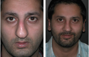 Rhinoplasty done by toronto surgeon