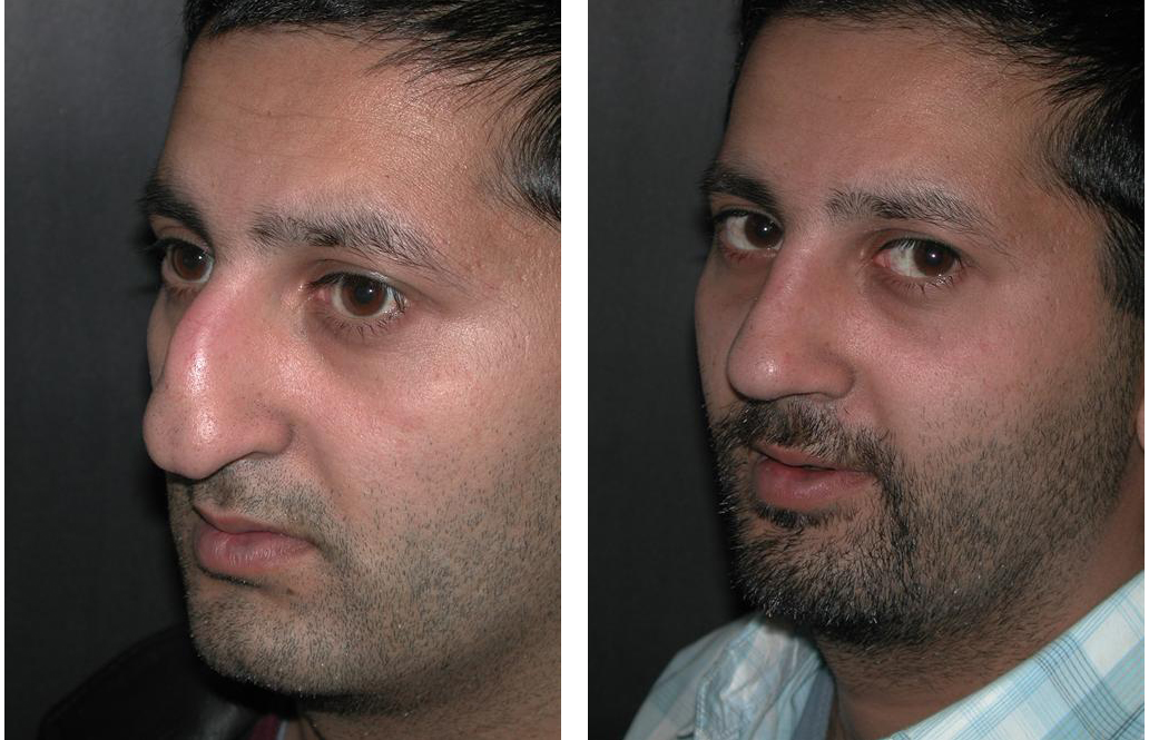 Toronto rhinoplasty by facial cosmetic surgeon Dr. Richard Rival