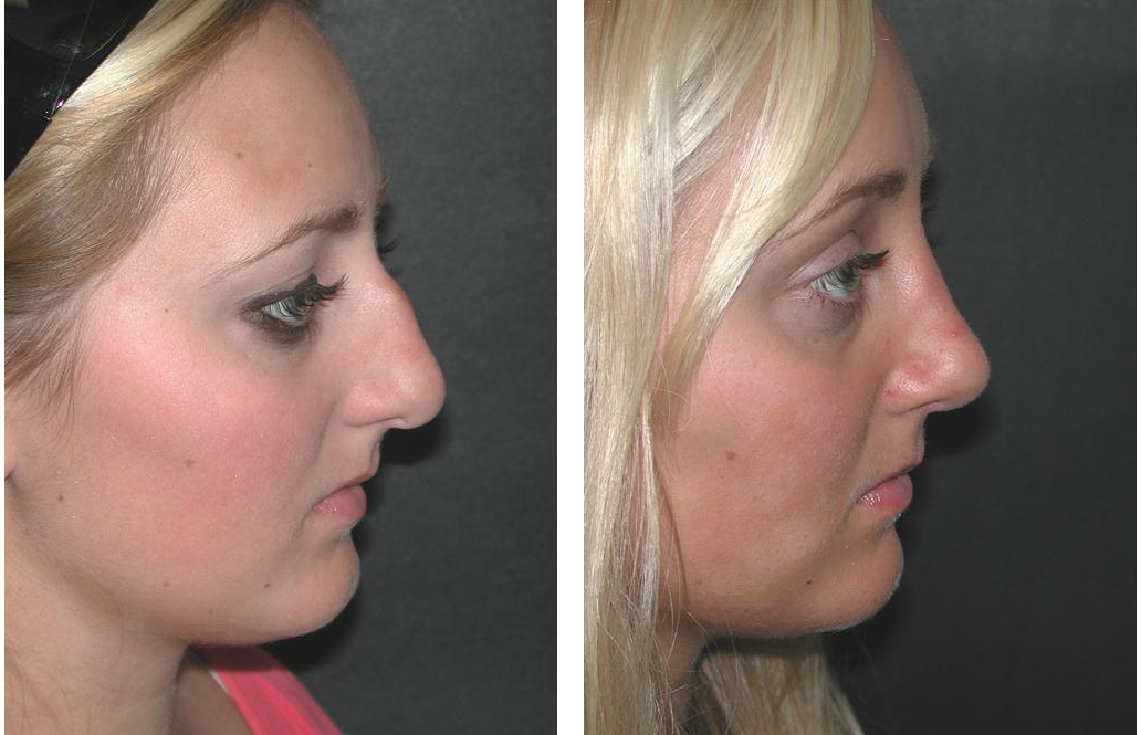 Side view of female nosejob done by Toronto plastic surgeon Dr. Richard RIval