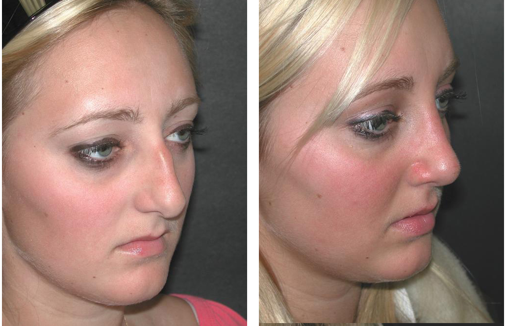 Nose job before and after photos by Toronto facial cosmetic surgeon Dr. Richard Rival