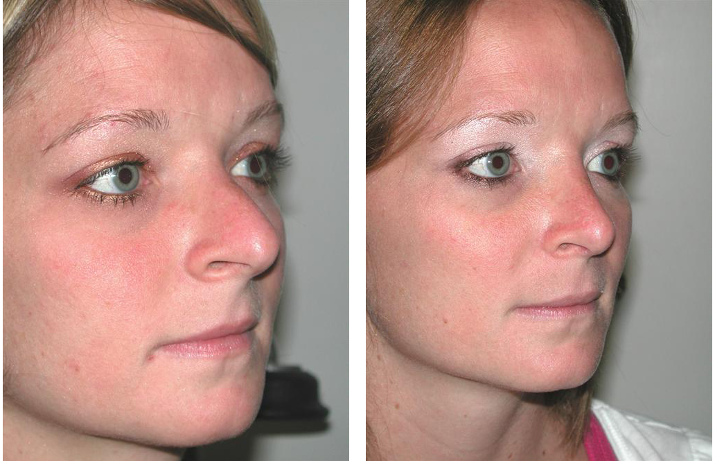 Toronto rhinoplasty surgeon Dr. Richard Rival performed nose job of caucasian female
