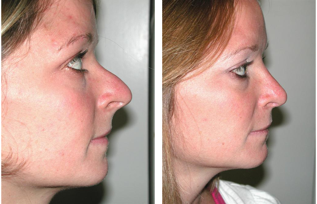 Sideview of toronto rhinoplasty by facial cosmetic surgeon Dr. Richard Rival