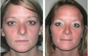 Newmarket rhinoplasty by Toronto Cosmetic Surgeon Dr. Richard Rival