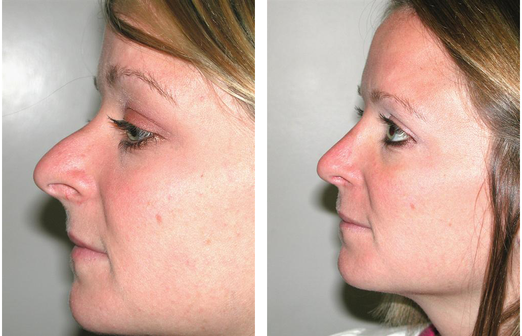 Rhinoplasty by best Newmarket Plastic Surgeon Dr. Richard Rival