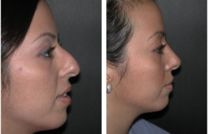 soothed bridge nose job on female by Dr. Rival of Toronto