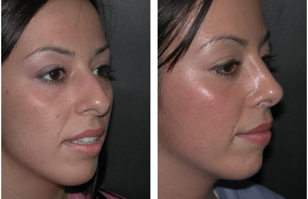 Rhinoplasty before and after by Richard Rival
