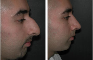 major rhinoplasty performed