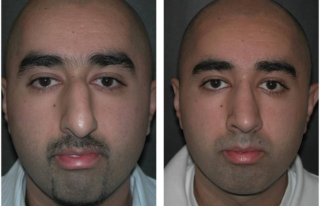 Before and after photos of newmarket rhinoplasty on male