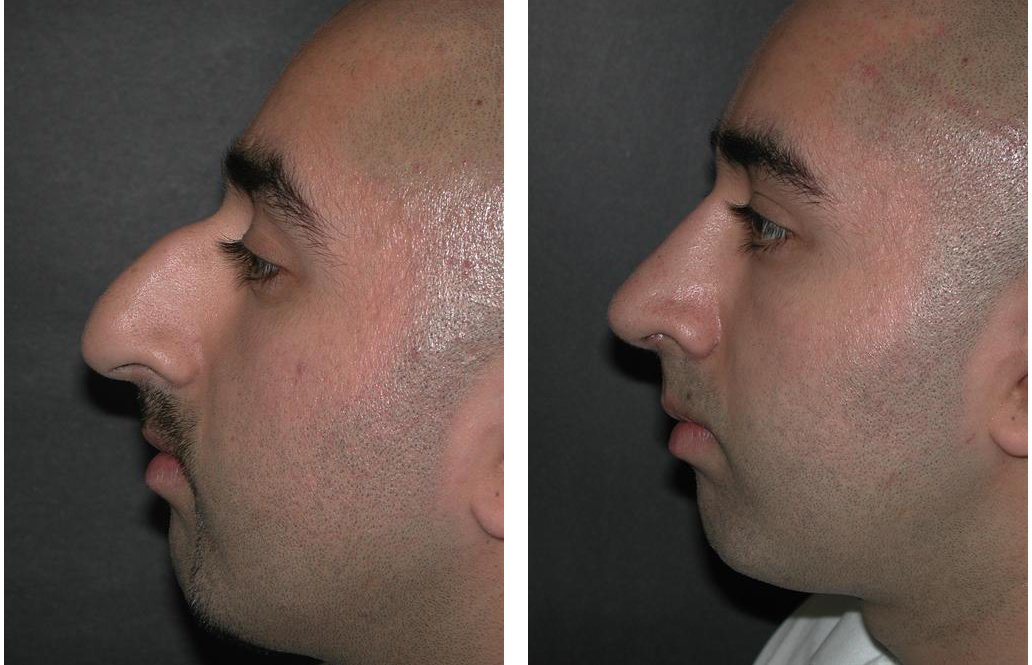 side view before and after of Toronto rhinoplasty by Dr. Richard Rival