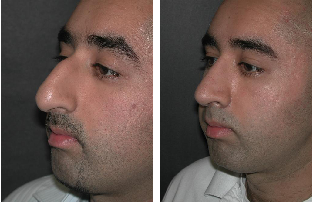 Before and after nosejob by Toronto rhinoplasty surgeon Dr. Richard Rival