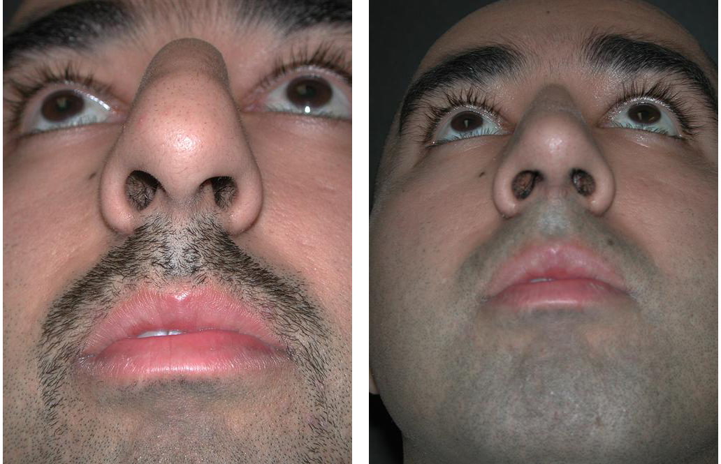 Newmarket rhinoplasty on male, before and after photos.