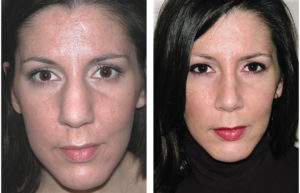brunette female rhinoplasty in toronto
