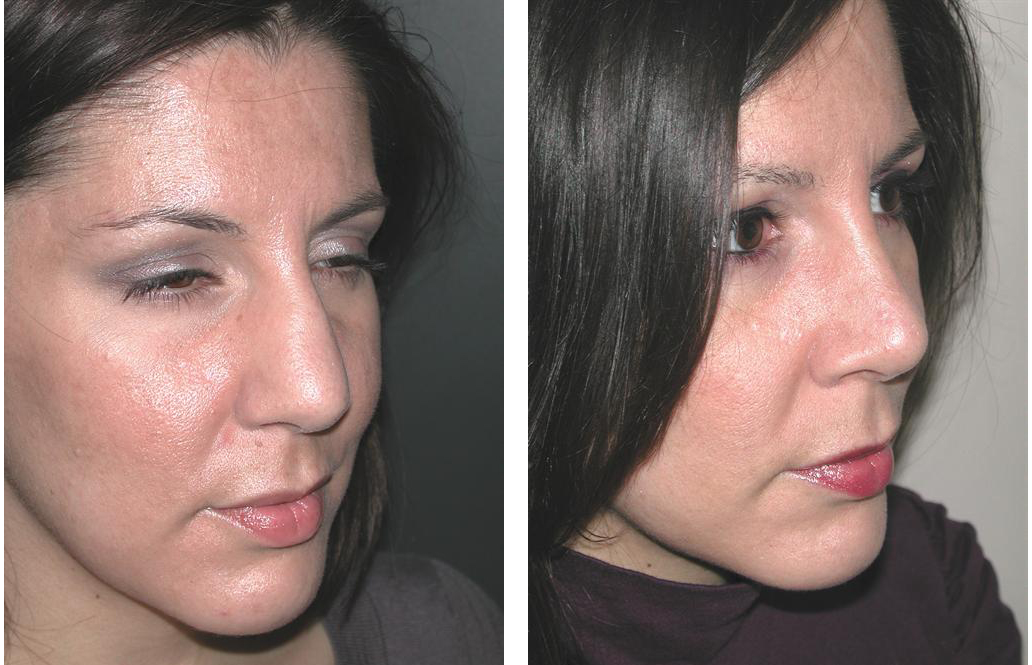 Rhinoplasty done by Dr. Richard Rival