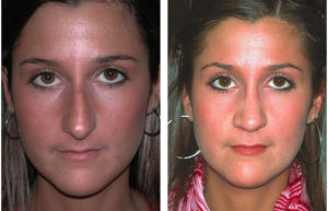 Toronto cosmetic surgeon Nose Job before and after