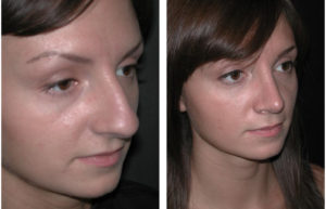 Stunning rhinoplasty performed by newmarket cosmetic surgeon Dr. Richard Rival