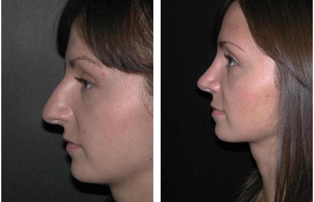 Newmarket Rhinoplasty by facial plastic surgeon Dr. Richard Rival