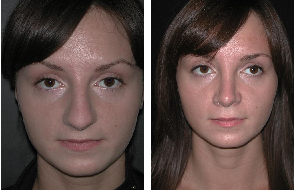 before and after newmarket nose job