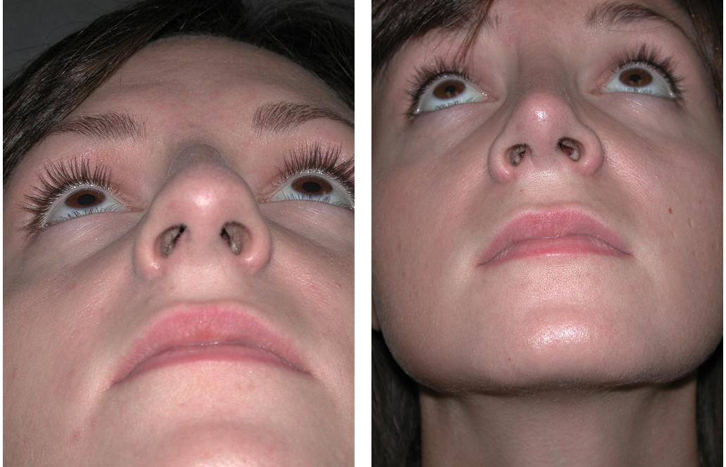 Before and after photos of Newmarket Rhinoplasty