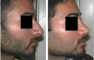 toronto male rhinoplasty