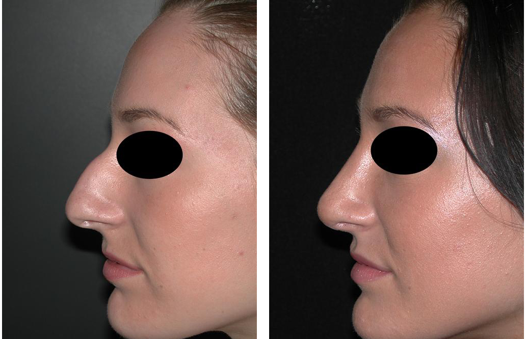 Before and after photos of female nose job in Toronto